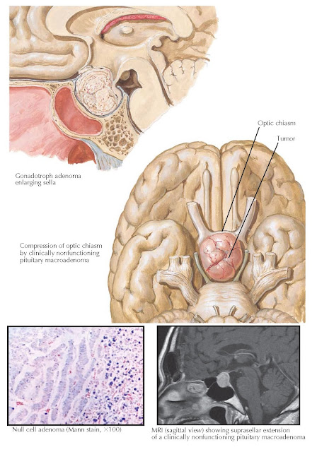 CLINICALLY NONFUNCTIONING PITUITARY TUMOR