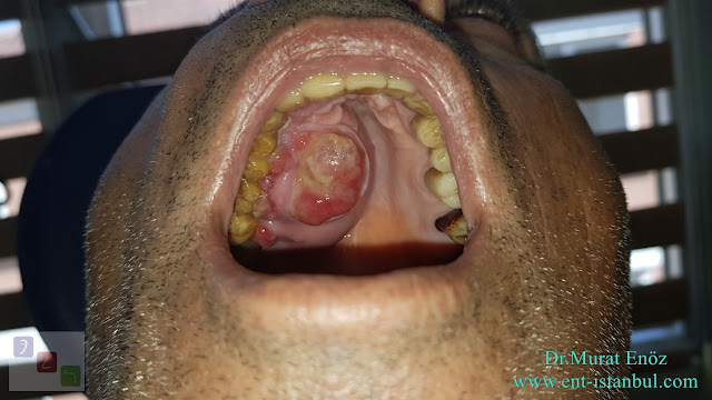 Carcinoma Ex Pleomorphic Adenoma of The Hard Palate