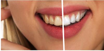 ¿Por qué los dientes se vuelven amarillos?
