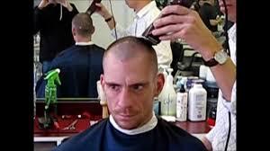 saç ekimi öncesi saç tıraşı