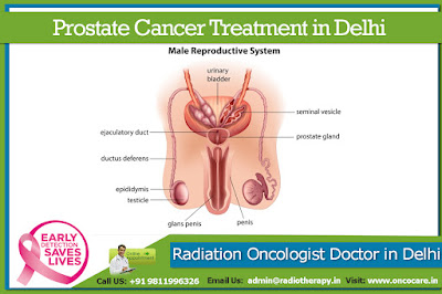 Prostate Cancer Ttreatment