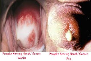 Obat Herbal Khusus Kencing Nanah