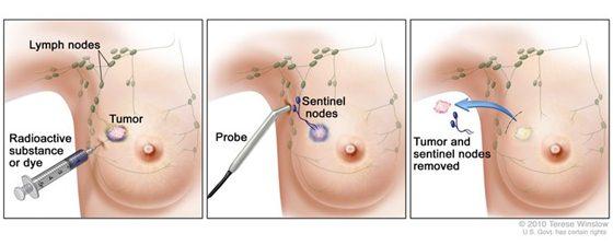 Gejala kanker payudara nyeri, kanker payudara dan cara penyembuhannya, obat kanker payudara dari herbal, kanker payudara stadium 1 2 3 4, kanker payudara di jawa timur, cara mengatasi kanker payudara tanpa operasi, jual obat kanker payudara, cara untuk mengobati kanker payudara, pengobatan kanker payudara dengan obat tradisional, vaksin kanker payudara, pengobatan alternatif kanker payudara di jogja