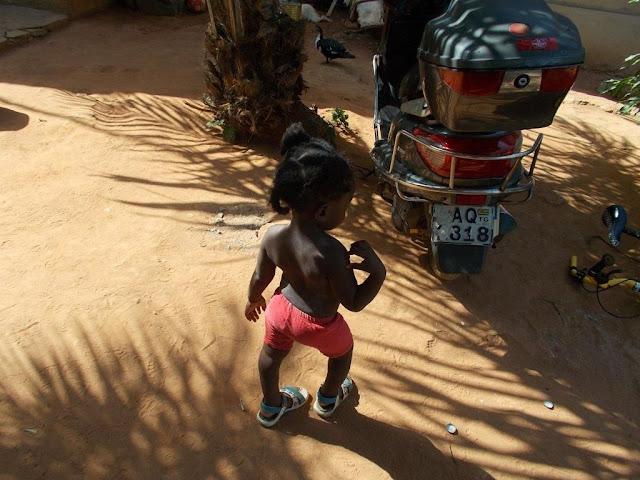 Das 2. jährige Mädchen konnte nicht gehen, war taub und lebte wie in einer anderen Welt. Durch die Rehabilitationsphase, die immer noch andauert, kann sie bereits laufen.