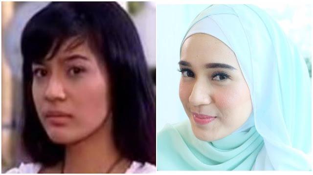 Mengejutkan! 7 Foto Perubahan Drastis Ratu Sinetron ini Bikin Pangling, Apalagi Nomor 5 Dhini Aminarti