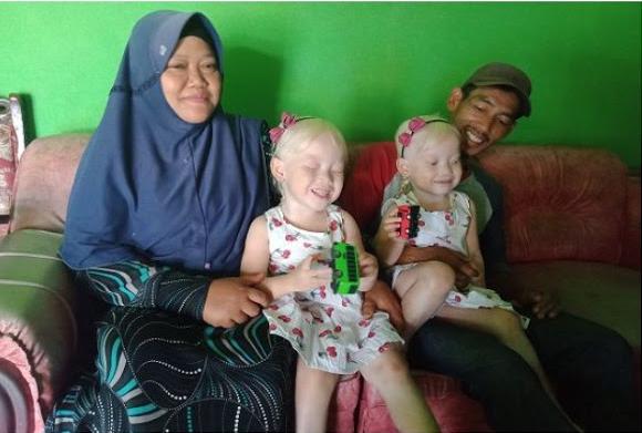 Viral Anak Kembar Bule Asli Wonogiri, Orangtua Suka Dikira Pembantu....