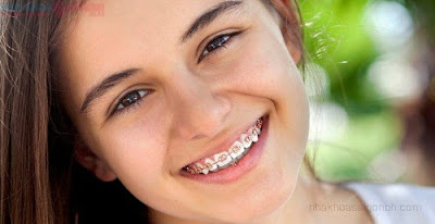 Bị móm có nên niềng răng?