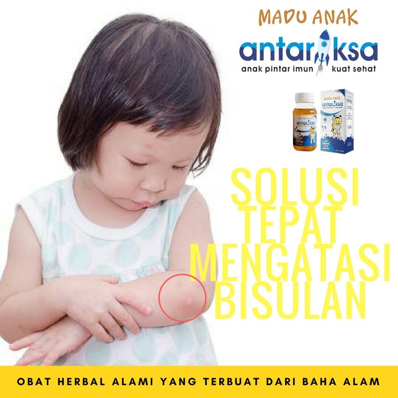 Obat Alami Untuk Bisul Di Kepala Anak