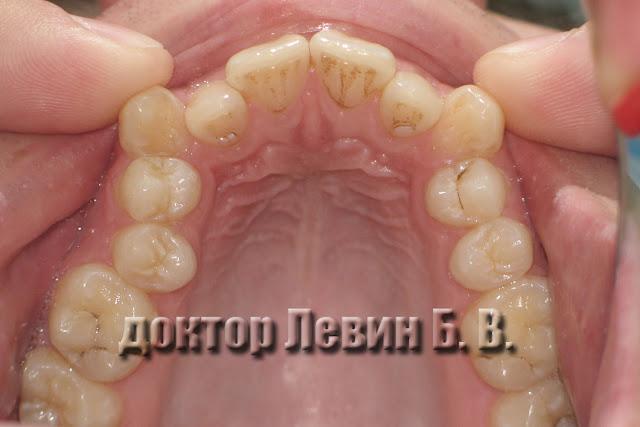 На снимке прикус пациента. Клыки занимают атипичное положение. Дистопия клыков.