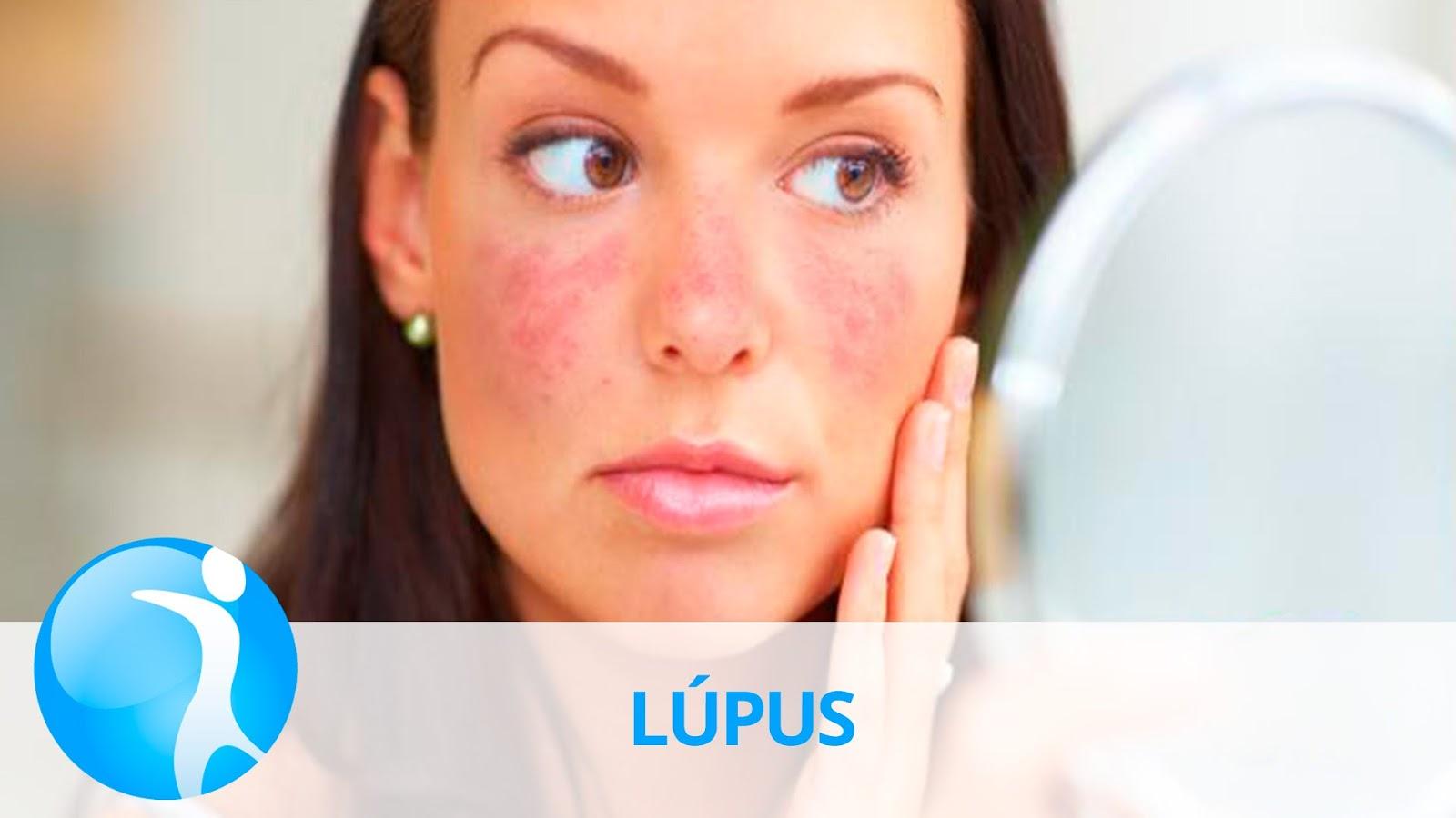 Penyebab-Penyakit-Lupus-dan-Pengobatannya
