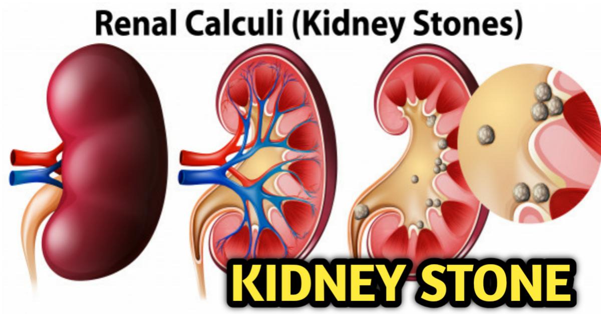Kidney Stone in Nepali