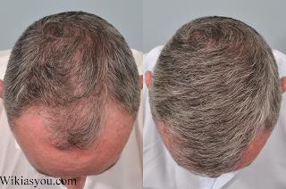 كيفية العناية بنفسك بعد عملية زراعة الشعر؟
