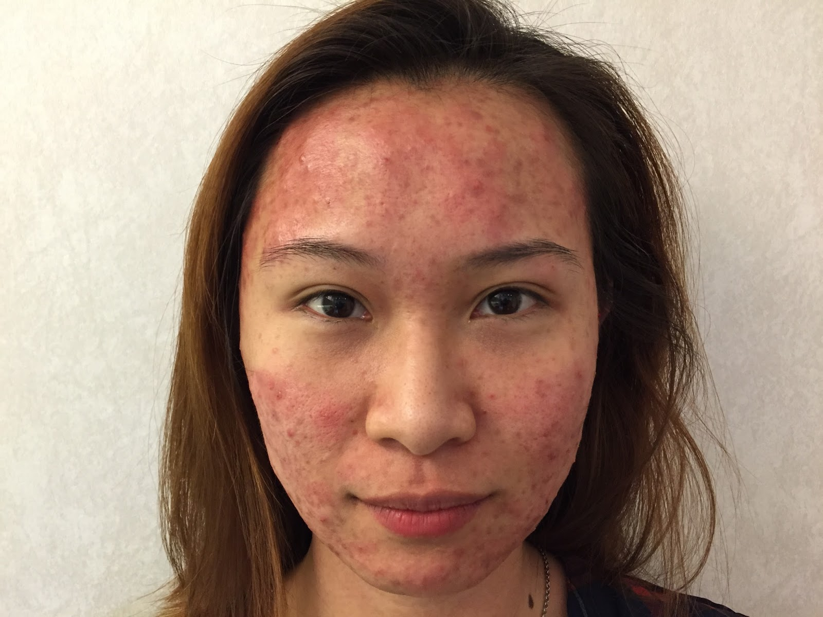 Here Is Patient S A Young Adult Female Whom Has Been Battling With Acne Since Her Teenage Years I First Met Her In June And This Pictures Were Taken On