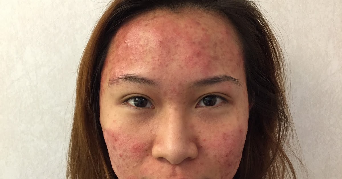 adult-facial-acne