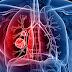 5 Cara Mencegah Kanker Paru-Paru