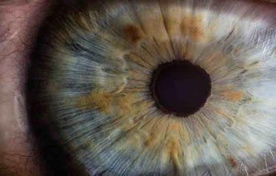 ماهو سبب ظهور عروق حمراء في بياض العين