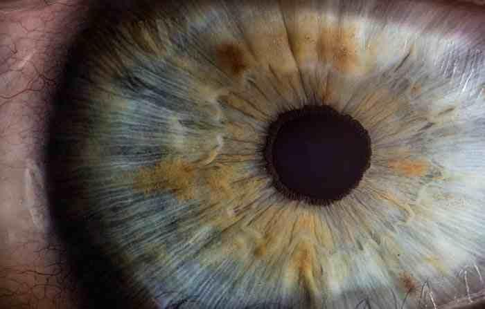 ماهو سبب ظهور عروق حمراء في بياض العين أو احمرار العين