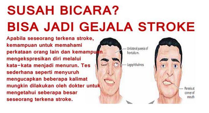 Terapi Stroke Ringan