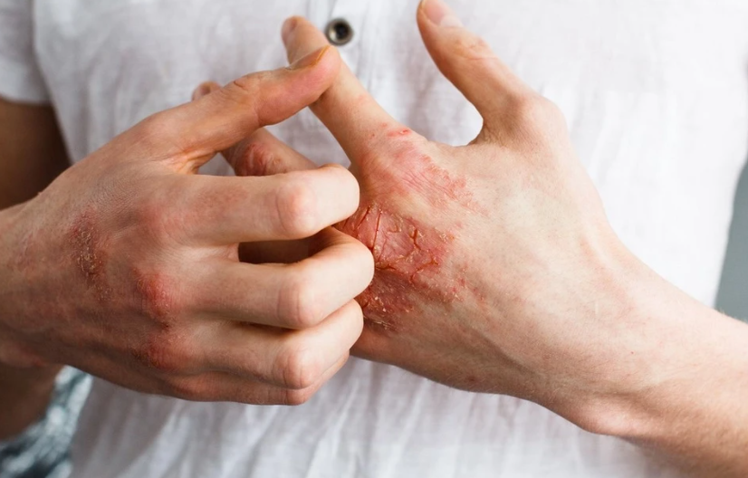 What can trigger the onset of the disease