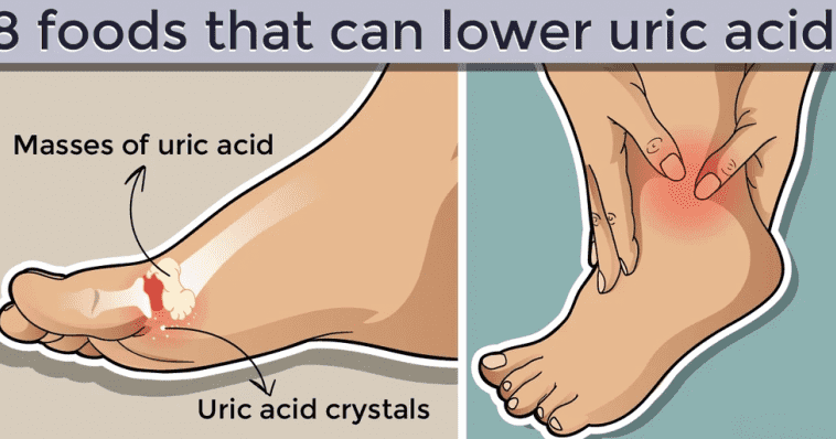 8 Foods Can Lower Uric Acid