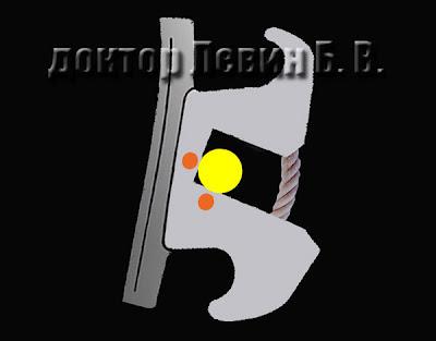 Биомеханика пассивной лигатурной фиксации брекета