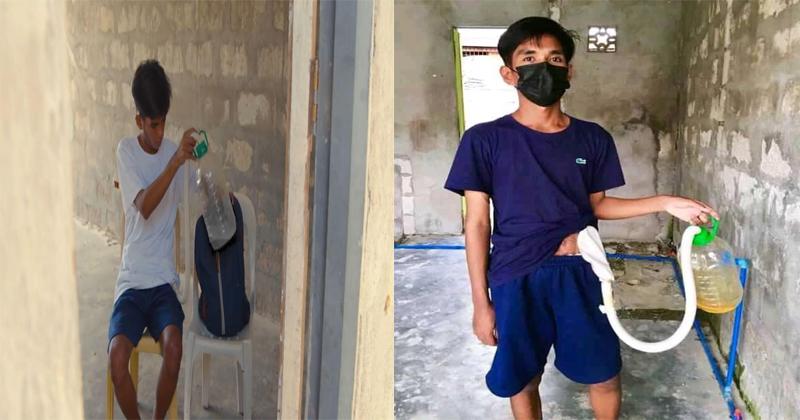 Isang lalaki 3-years ng sukbit-sukbit ang bag na kaduktong na umano ng kanyang buhay