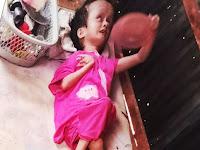 Miris, Sejak Lahir Menderita Hidrosefalus Gadis 24 Tahun di Pangkep Hanya Bisa Pasrah