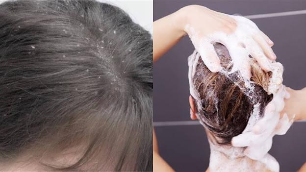 Aprende a eliminar la grasa del cabello de forma natural