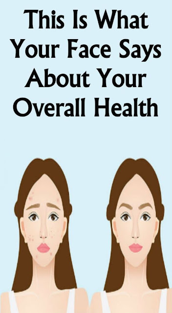 This Is What Your Face Says About Your Overall Health