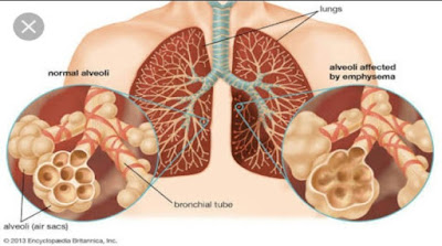 Emphysema , Diagram of Emphysema