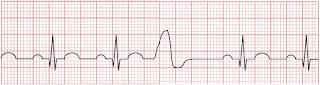 An ECG of premature ventricular contraction.