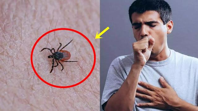 Corona Belum Berakhir, Kini Heboh Virus Tick Borne dari China Lagi, Kenali Gejalanya!