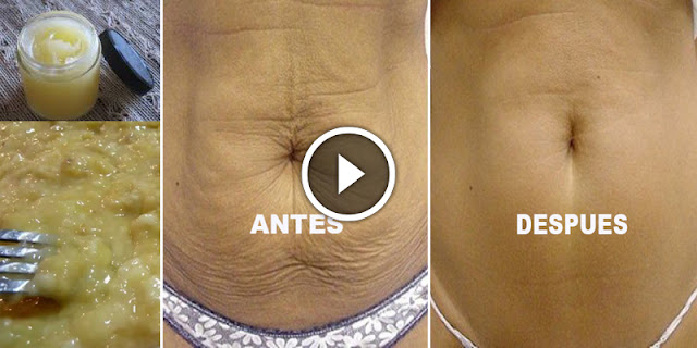 How To Get Rid Of Sagging Stomach And Fat Naturally