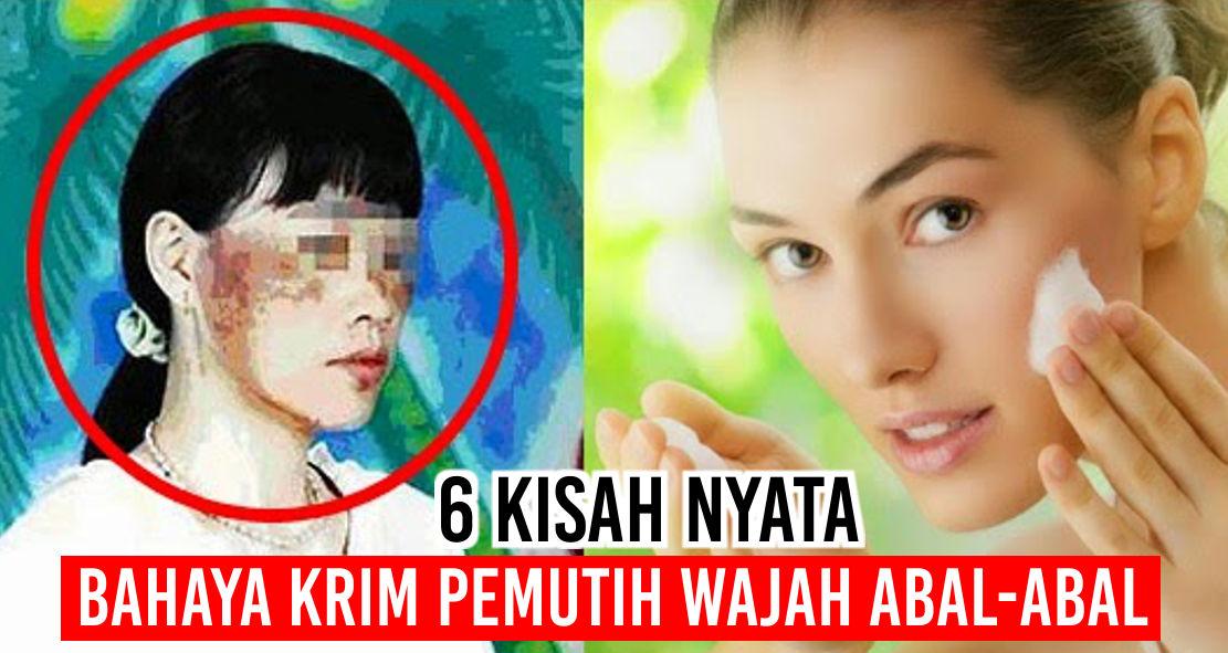 6 Kisah Nyata Bahaya Krim Pemutih Wajah Abal-Abal