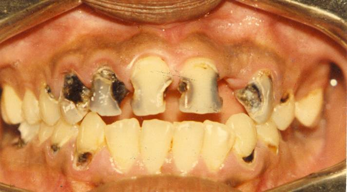 Dental treatment, braces, tooth ache, dentist     : Tooth