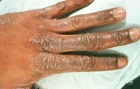 skin dryness fast