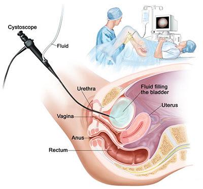 https://www.altiushospital.com/cystoscopy.html