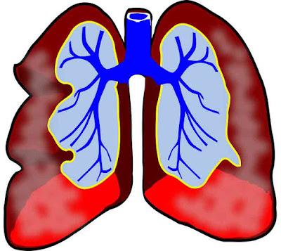 Dampak Negatif Pemakaian Oksigen Berlebihan Terhadap Kesehatan Tubuh