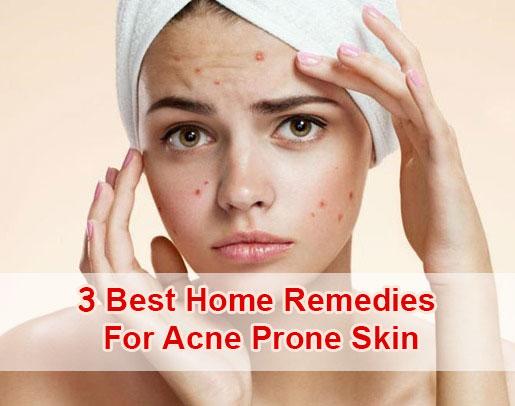 3 mejores remedios caseros para la piel propensa al acné-1506