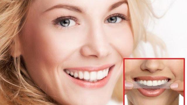 cara efektif memutihkan gigi