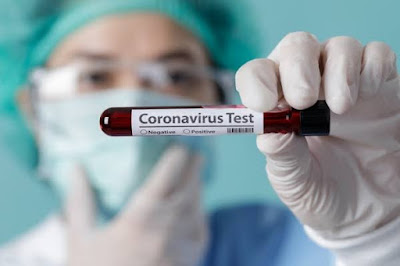 Swab Test Corona dari SehatQ