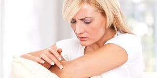 Foto Risiko Penyakit Serius Di Balik Kulit Gatal