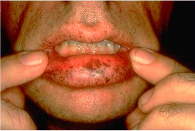 Peutz-Jeghers 综合征的口周黑子