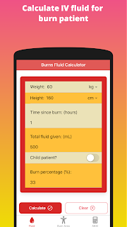 Calculate IV fluid for  burn patient