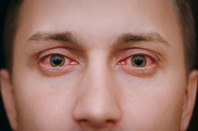 Theboegis : 7 Myths of Red-Eye Due to Conjunctivitis that Need to be Straightened