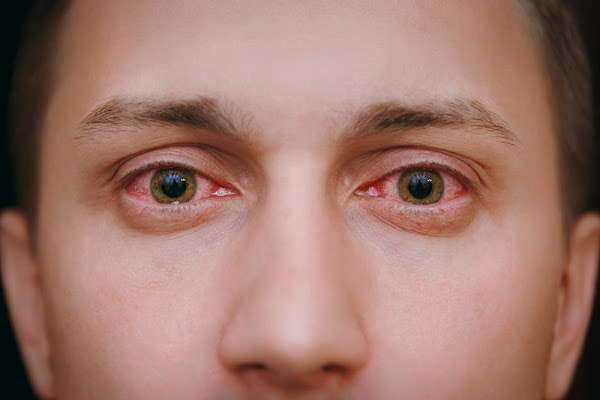 7 Myths of Red-Eye Due to Conjunctivitis that Need to be Straightened