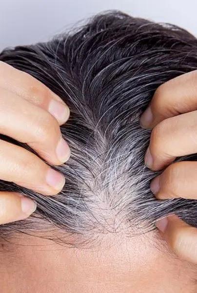 Pourquoi les cheveux gris prématurés sortent-ils?