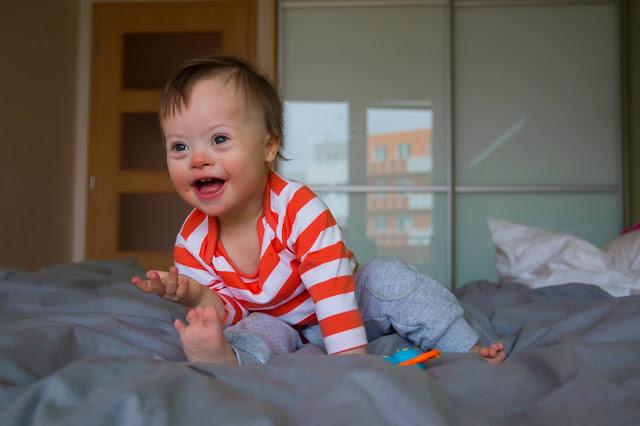 Kisah Anakku yang Mengalami Down Syndrome Bagian Kedua