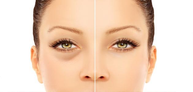 علاج الانتفاخ حول العين 2019