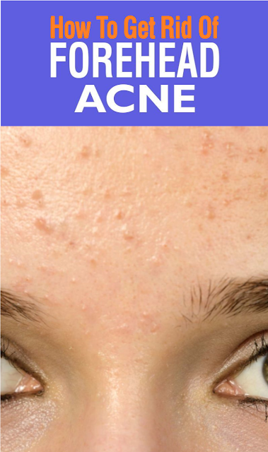 Forehead Acne: Causes, Treatment, And Prevention Tips